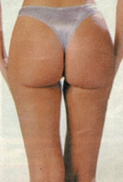 Surgery was also carried out to remove the saddlebags and achieve an attractive buttock shape.