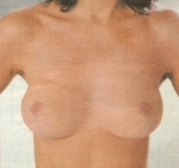 Evelyn Gruber - beauty surgery breast area