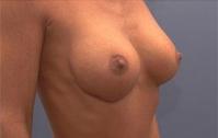 Dass in der Apotheke für die Erhöhung der Brust ist